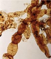 reduviasporonites